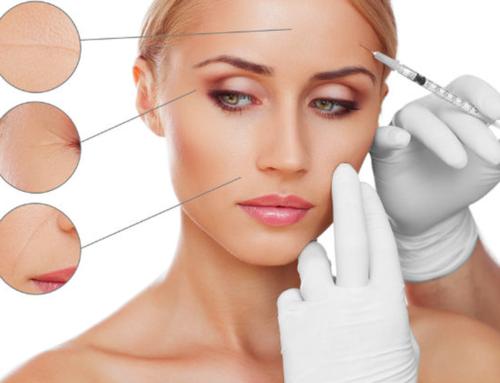Tényleg veszélyes lenne a botox kezelés?